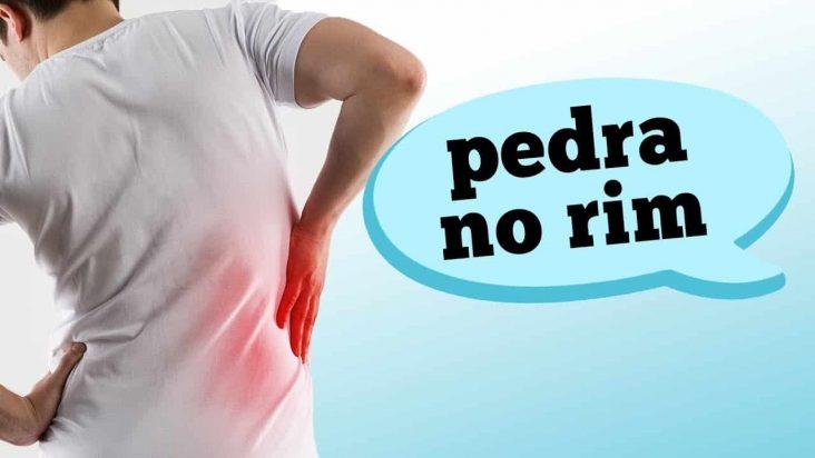 Você sabia que muitas pessoas confundem pedra no rim com dor nas costas? Aprenda hoje a diferenciar os sintomas com o auxílio do urologista Fabio Ortega.